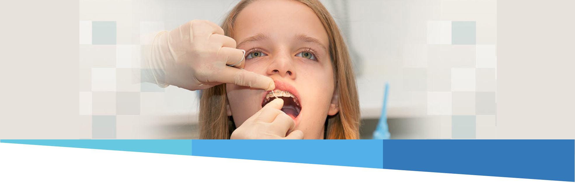 Zahnseidebehandlung bei einer Spange